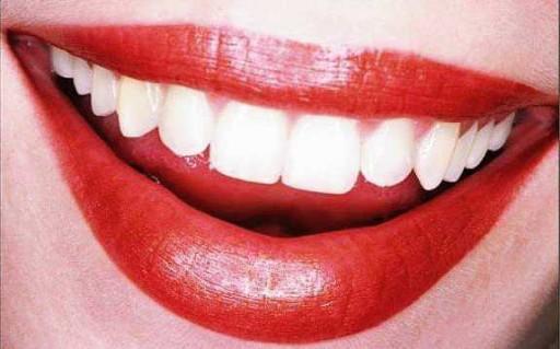 Sognare i denti