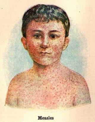 Illustrazione sui segni del Morbillo